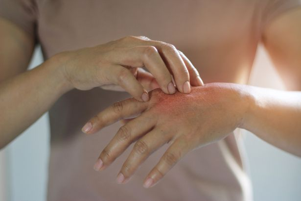 0_Healthcare-and-medical-concept-Female-scratching-the-itch-on-her-hand-cause-of-itching-from-skin-d